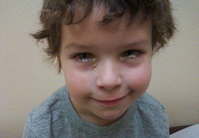 Бактериальный конъюнктивит у детей - лечение, симптомы, причины