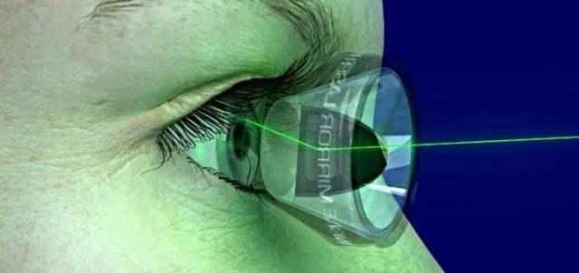 Лазерное лечение глаукомы - показания, виды, отзывы