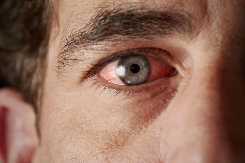 Ангулярный конъюнктивит - что это, фото, лечение, симптомы, причины