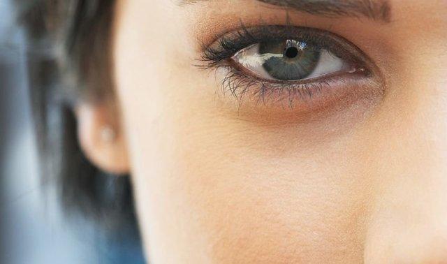 Впадины под глазами - как избавиться, причины
