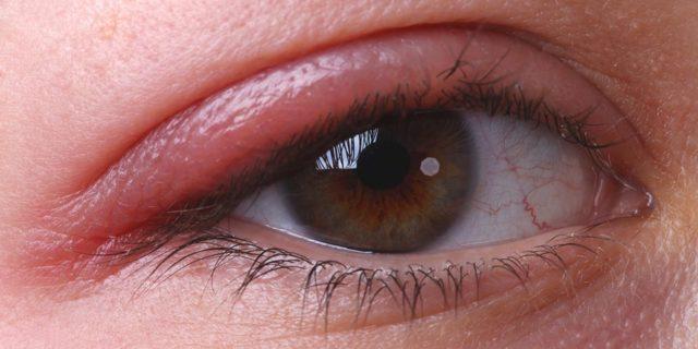 Чешутся глаза - причины зуда, что делать