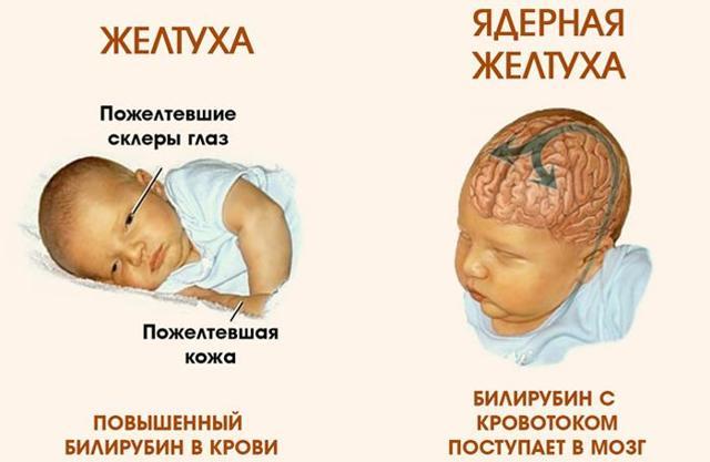 Желтые белки глаз у новорожденных - причины, последствия, лечение