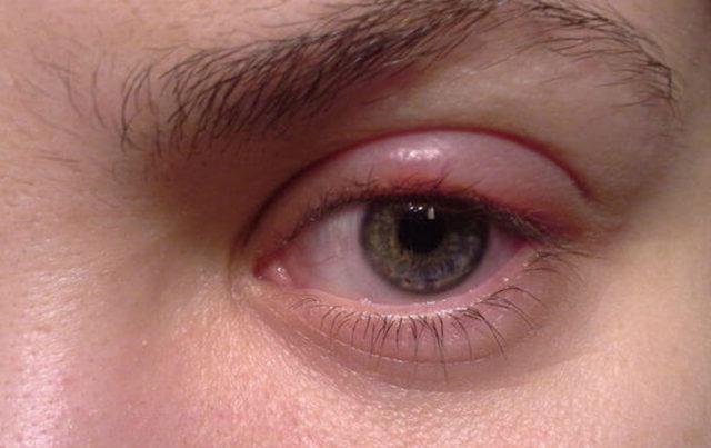 Аллергия на веках - причины, что делать, лечение, последствия