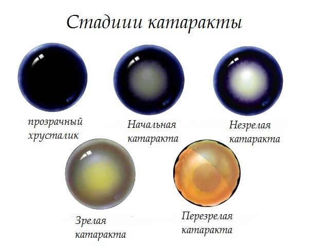 Катаракта и глаукома - признаки и отличия