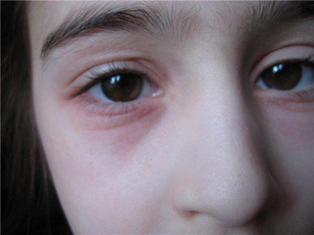 Блефарит у детей - фото, симптомы, лечение
