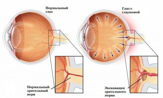 Как снизить глазное давление в домашних условиях