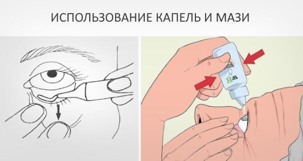 Герпес на глазу (офтальмогерпес) - фото, симптомы, причины, лечение, последствия