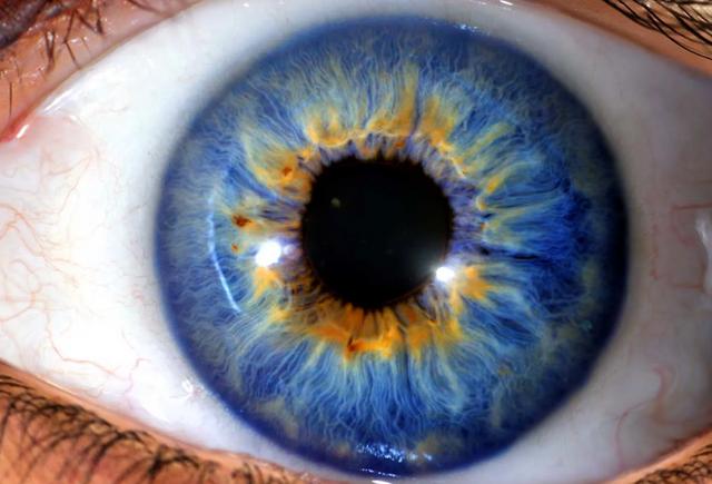 Влияние цвета глаз на зрение