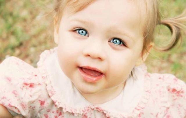 Врожденные синяки под глазами
