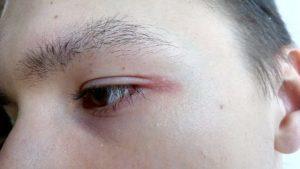 Болит уголок глаза внешний или внутренний