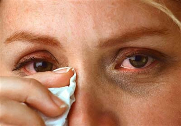 Жидкость для снятия лака попала в глаз