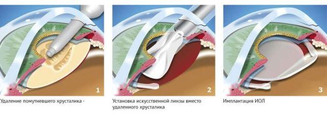 Замена хрусталика глаза - послеоперационный период, как быстро восстанавливается зрение