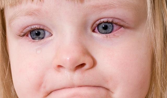Глазное давление у детей - симптомы, норма