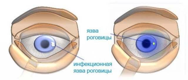 Язва роговицы глаза - что это, лечение, причины и симптомы