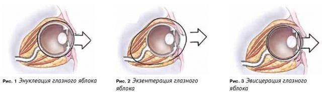 Экзентерация глаза - что это, как проводят, последствия