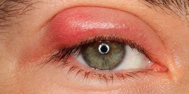 Воспаление глаз - лечение покраснения и воспалительных заболеваний в домашних условиях