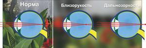 Зрение минус 2 - что это значит, как видит человек, как восставить зрение