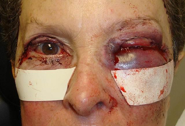 Синяк под глазом без ушиба - причины появления, лечение