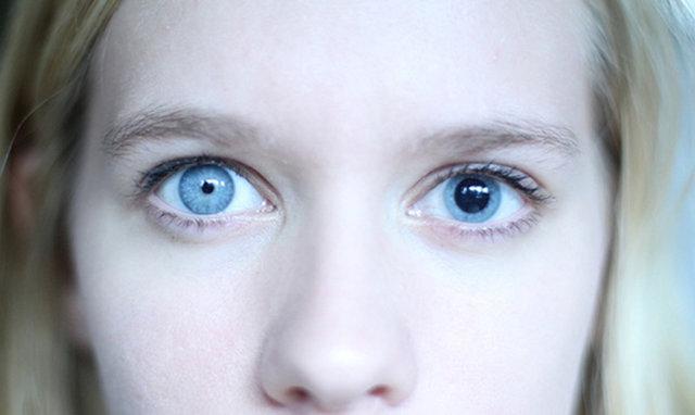 Зрачки не реагирует на свет - причины, лечение