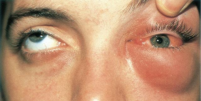 Абсцесс века - фото, симптомы, причины, лечение, последствия