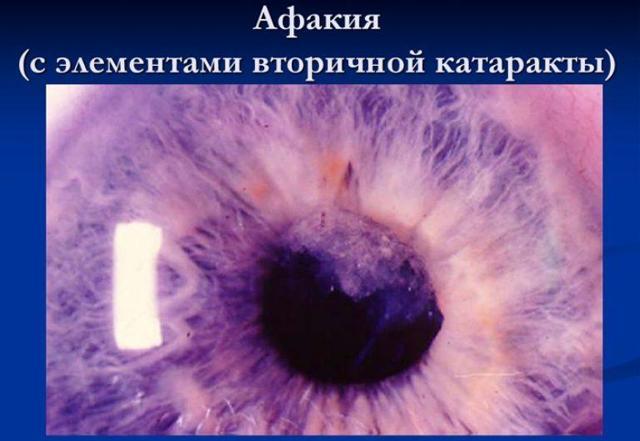 Афакия - что это, лечение, причины и симптомы