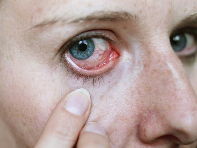 Болит глазное яблоко - причины, что делать