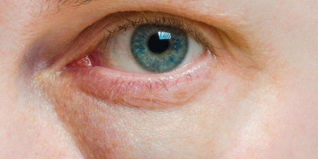 Как быстро снять отек с глаз