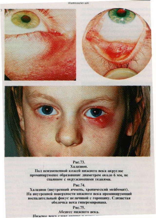 Алоэ для лечения халязиона у детей