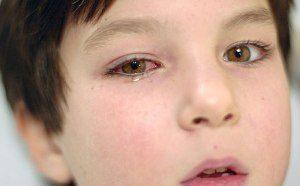 Что делать, если уксус попал в глаза
