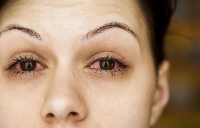 Воспаление вокруг глаз - причины, как снять
