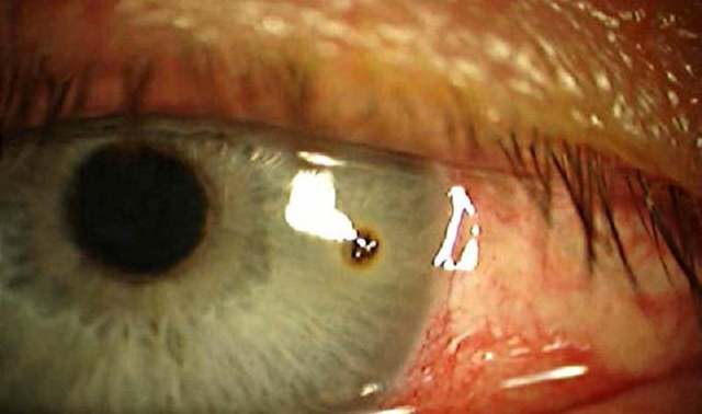 Эрозия роговицы глаза - лечение, последствия, причины и симптомы