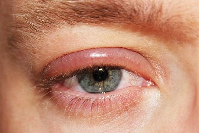 Блефарит - что это, симптомы и лечение у взрослых