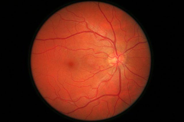 Восстановление сетчатки глаза