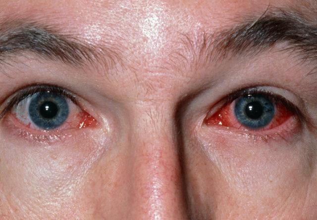 Аденовирусный конъюнктивит - фото, симптомы, причины и лечение