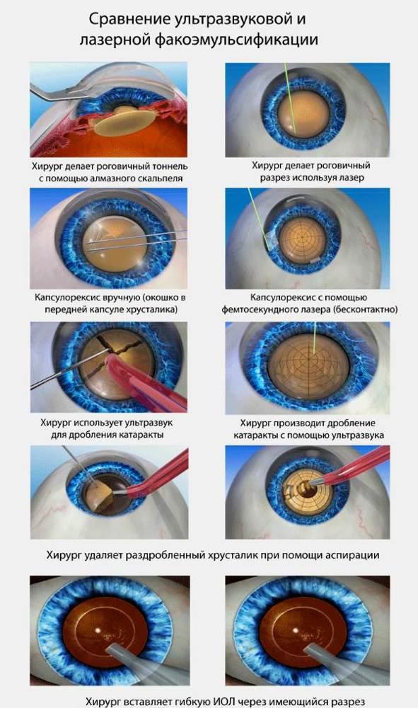 Факоэмульсификация катаракты - показания к операции, осложнения