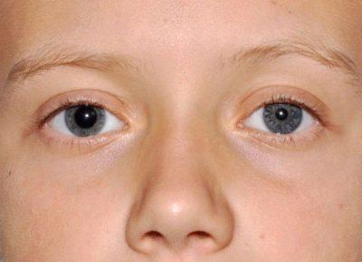 Разные по размеру зрачки у ребенка - причины анизокории