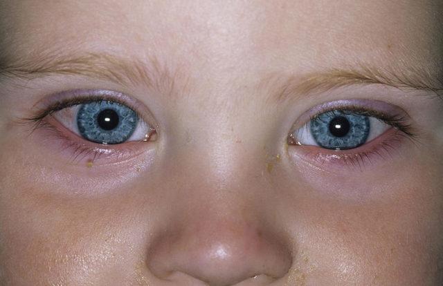 Аденовирусный конъюнктивит у детей - лечение, причины, симптомы