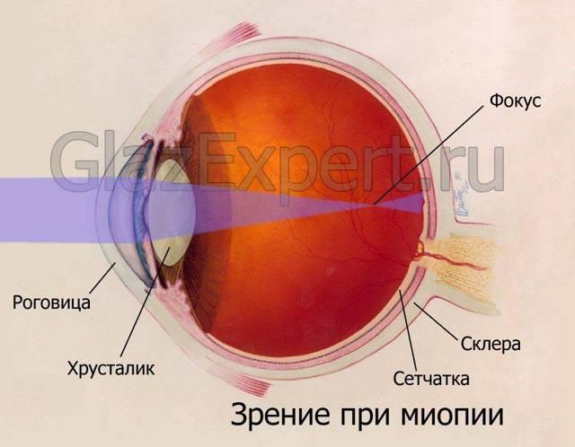 Близорукость (миопия) - что это, причины, степени