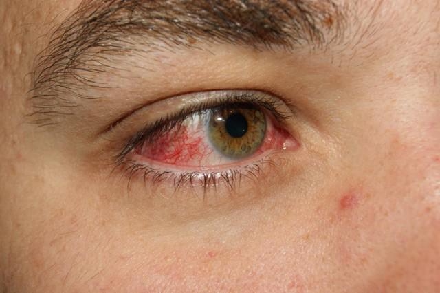 Глаз покраснел и болит - что делать, причины