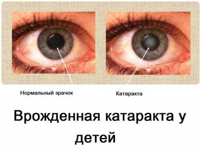 Врожденная катаракта у детей