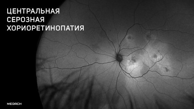 Центральная серозная хориоретинопатия (ЦСХ) - причины, симптомы, лечение