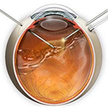 Эпиретинальная мембрана - причины, симптомы, лечение