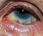 Энтропион (заворот века) - причины, лечение, последствия