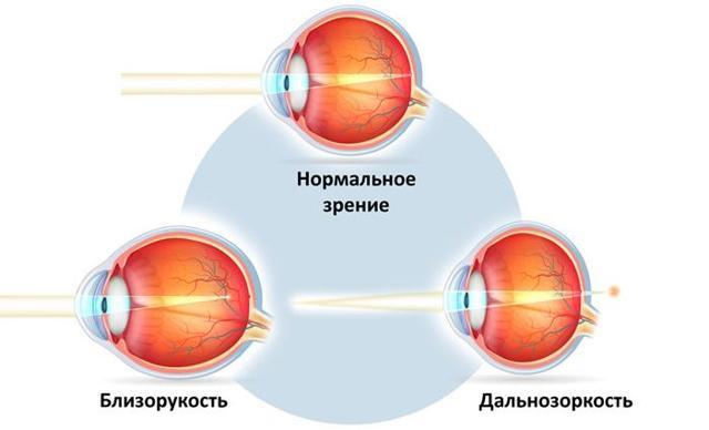 SPH, CYL, AX - что это значит в офтальмологии