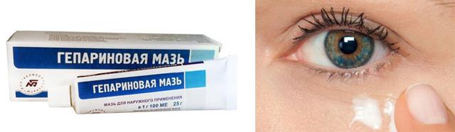 Гепариновая мазь от отеков под глазами - отзывы врачей и пациентов