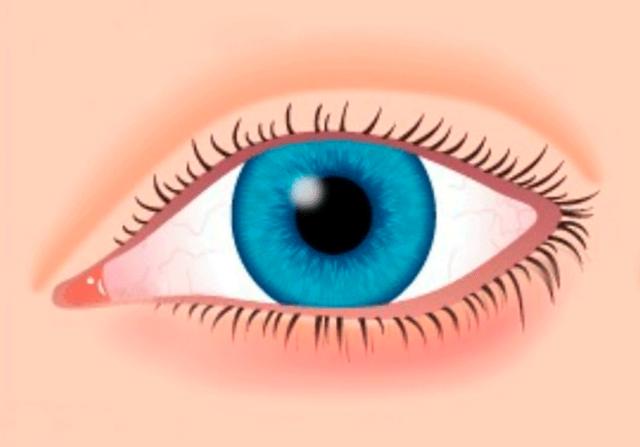 Покраснение глаз: причины, лечение, что делать