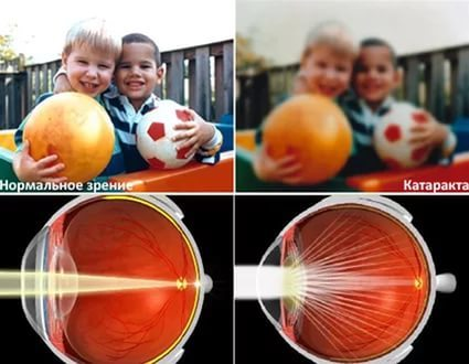 Врожденная катаракта - причины, симптомы и лечение