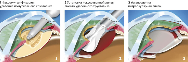 Когда нужно оперировать катаракту