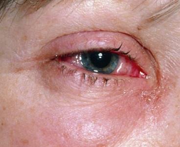 Опухло и покраснело под глазом - что это, причины, лечение, последствия