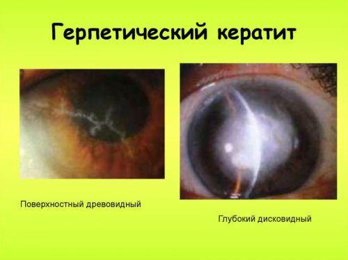 Герпетический кератит - что это, симптомы и лечение